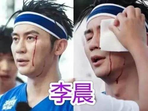 明星 明星参加综艺节目有多危险?邓超打石膏、baby骨折,而他血流不止!