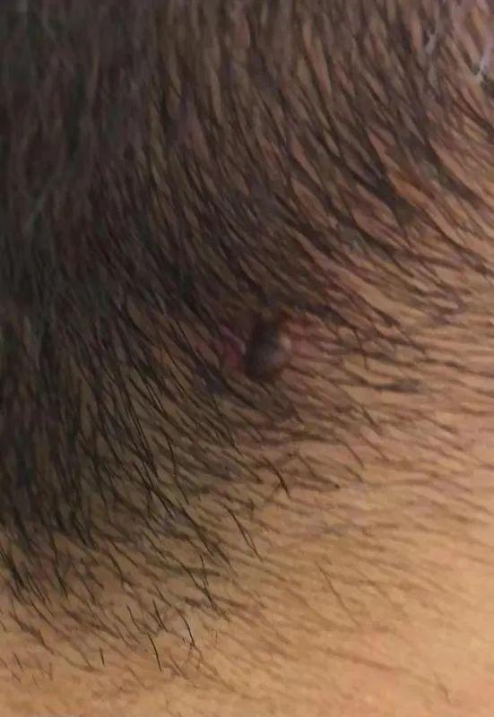 3歲男童後腦勺疼,結果發現一個「黑點」!嚴重可致命