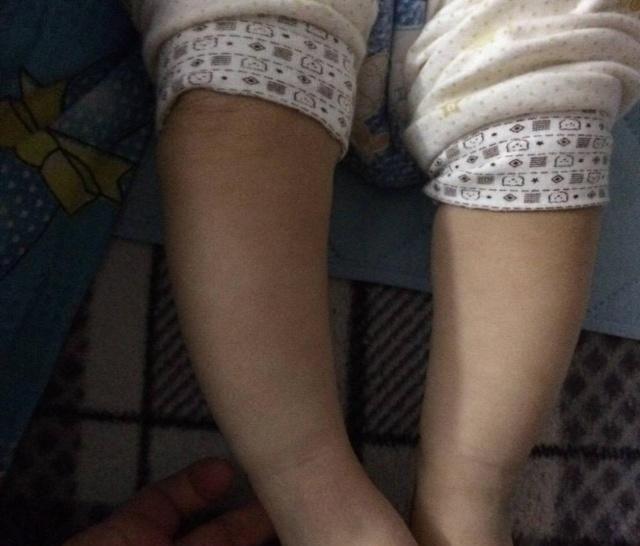 寶寶身體如果有這3種表現,可能是缺鈣了,寶媽要及時給孩子補鈣