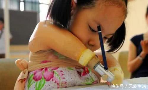 孕检 孕检发现孩子没手没脚,宝妈不顾医生劝阻坚持生,如今活成小公主