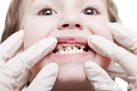 宝宝几岁开始长牙?几岁开始刷牙?做好护理,宝贝才不会长虫牙