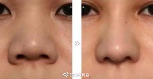 鼻翼肥大有哪些方法可以改善?怎么判断自己鼻翼是否肥大?