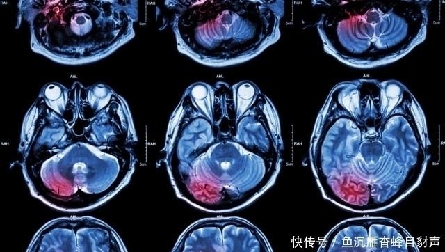 腦梗的元兇找到了,愛吃這3種食物的人,小心血液黏稠如粥