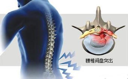 @腰椎間盤突出患者,醫生喊你做「三好學生」