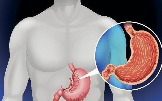 """症状 胃病会拖累胃癌吗?如果饭后有3种表现,可能是""""胃癌""""的信号!"""