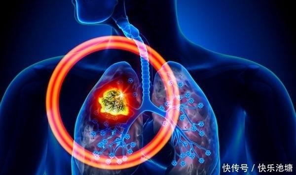 手术机会|肺癌晚期是什么意思?应该怎么办?还可以治愈吗?