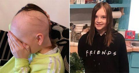 她从5岁开始脱发,如今12岁一头秀发掉光了